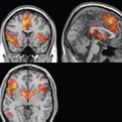 Imagen de resonancia magnética funcional.