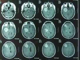 Output resonancia magnética cerebral