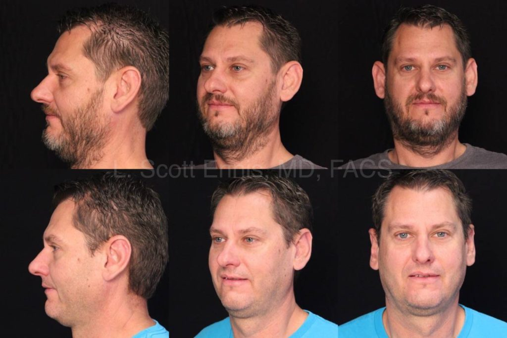 Image result for Common Types of Plastic Surgery for Men