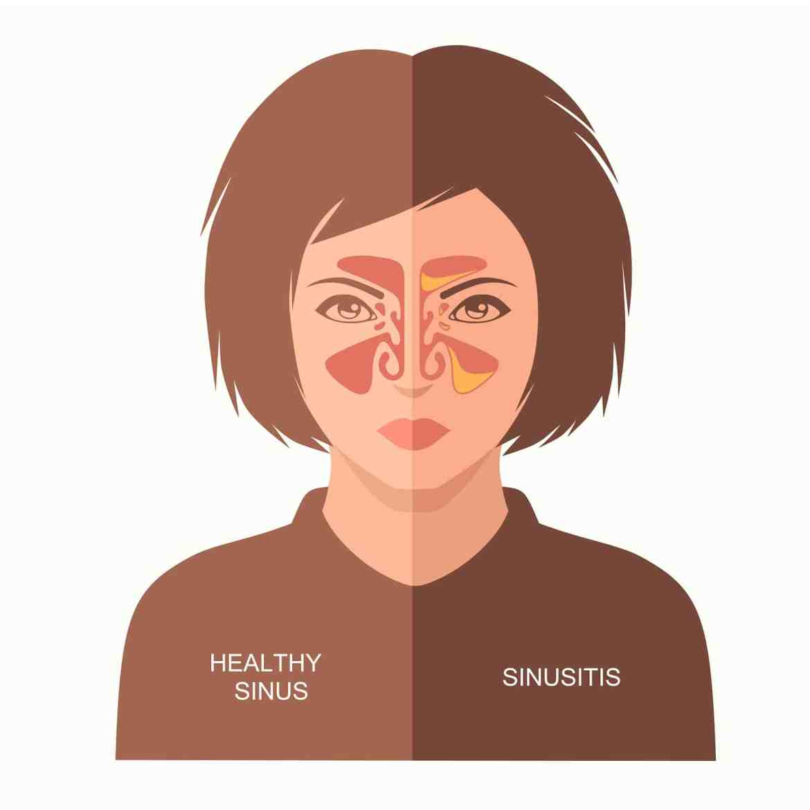 Is it a sinus infection? - The ENT Institute