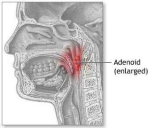 Adenoidectomy | ENT Matters