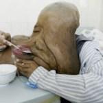 Las enfermedades más extrañas del mundo