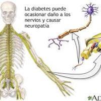 Neuropatía diabética y ejercicio ¿Son compatibles?