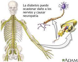 Neuropatía 2