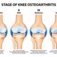 Ejercicio físico recomendado en personas con artritis
