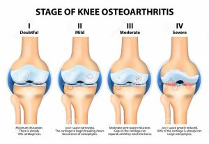 stages-knee-osteoarthritis-oa-kellgren-lawrence-criteria-assessment-stage-classifications-45644007