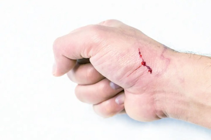 ¿Puede afectar la falta de vitamina C la cicatrización?