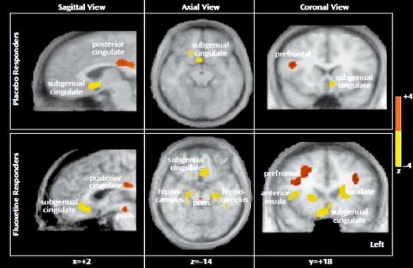 Neuroimagen de respuesta placebo en analgesia: los sistemas estimulados son los mismos tanto si tratamos el dolor con analgesicos como con placebos.