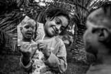 Foto: Younes Khani / UNICEF. Hay fotos que muestran una realidad tan terrible que obligan a desviar la vista. Como las del fotógrafo iraní Younes Khani. Documentó la vida con un esposo como Amir, quien encerró a su esposa Somayeh repetidamente y no dejaba de golpearla. Cuando la esposa resolvió separarse de él, volcó ácido en la cara de la esposa y de la hija de cuatro años, Rama. Somayeh es ciega desde entonces. Rama perdió un ojo. Sufrieron terribles quemaduras en su cara y todo su cuerpo. El padre de Somayeh tuvo que vender su hacienda y tierras para proporcionarles atención médica. Una vez por mes viajan a Teherán para tratamiento en un hospital. Rama tiene esperanzas de que algún día pueda ir a la escuela.