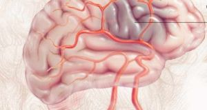 Stroke  Study warns stroke rates rising in young adults Stroke