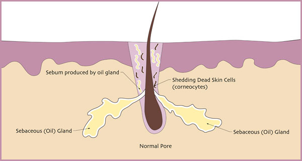 what causes acne diagram lutron grafik eye 4000 wiring skin cell all data is pimples pustule as the dead cells begin to