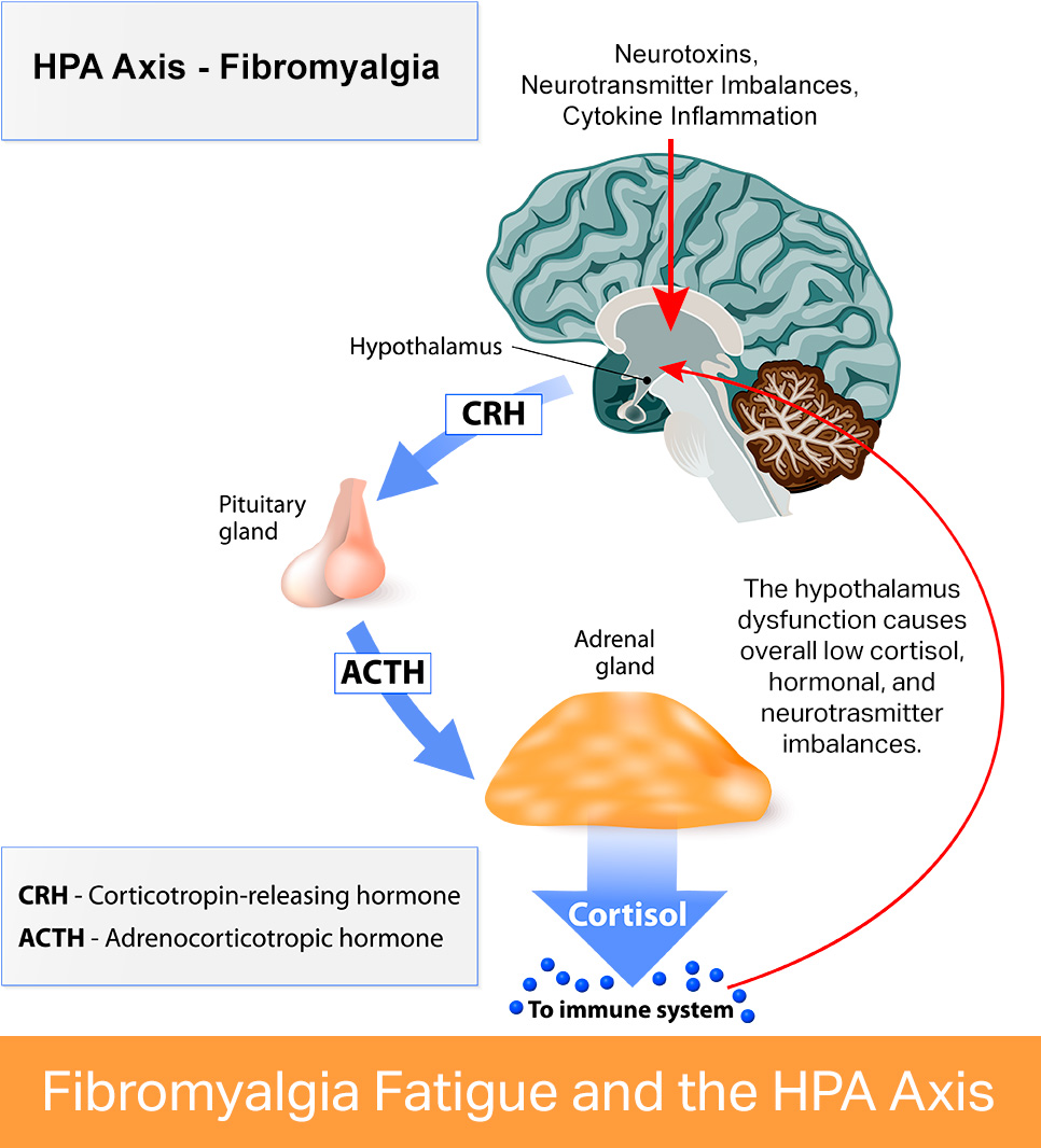 Fibromyalgia Breakthrough - Treat The Causes Not Just The ...