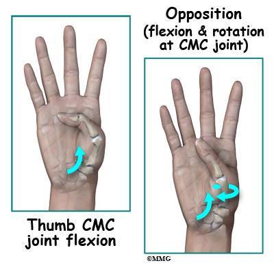 Adult Thumb Metacarpal Fractures - James Seeds MD ...
