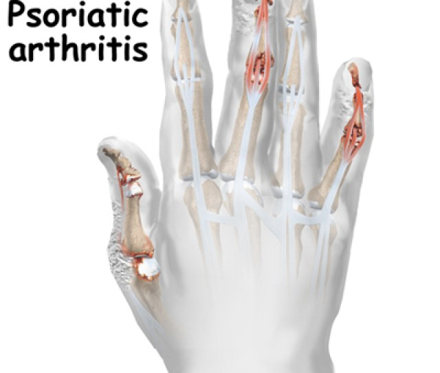 A Patients Guide To Psoriatic Arthritis