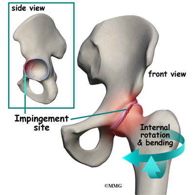 Image result for femoral acetabular impingement