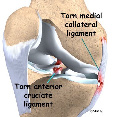 ACL & MCL Tears