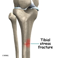 Diagram Of Tibia Stress Fracture 230 Volt 3 Phase Motor Wiring Shin Splints | Eorthopod.com