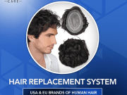 Non-Surgical-Hair-Replacement-System
