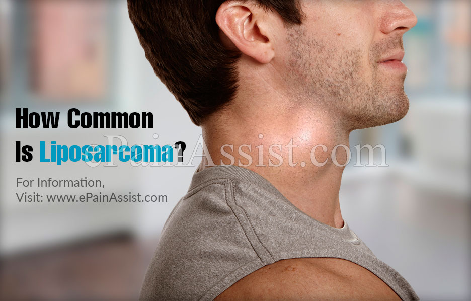 Is Liposarcoma Life Threatening?