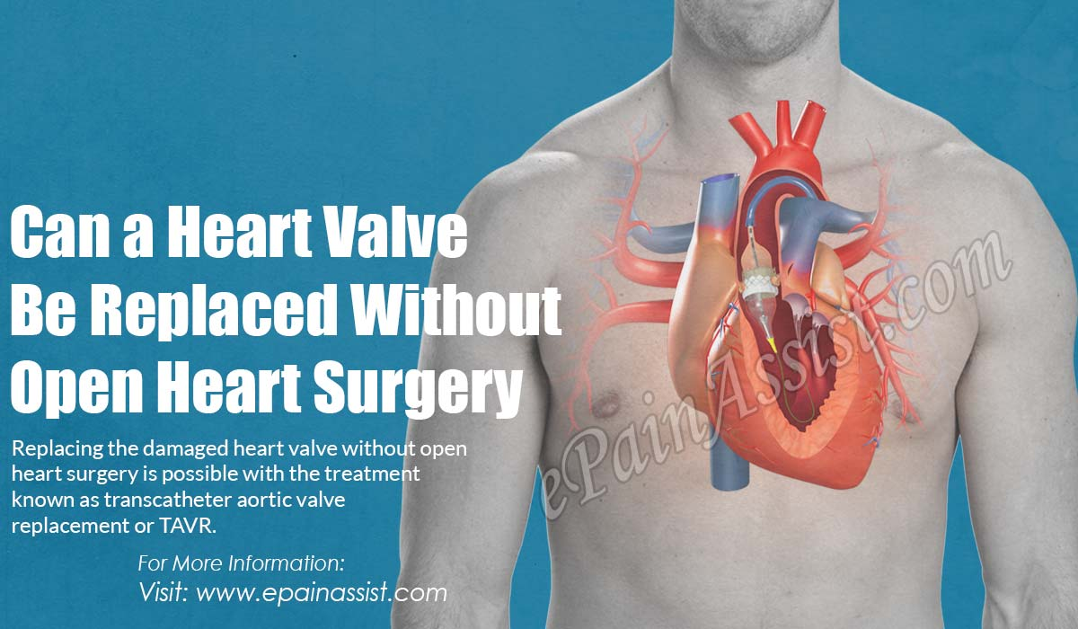 Can a Heart Valve Be Replaced Without Open Heart Surgery?