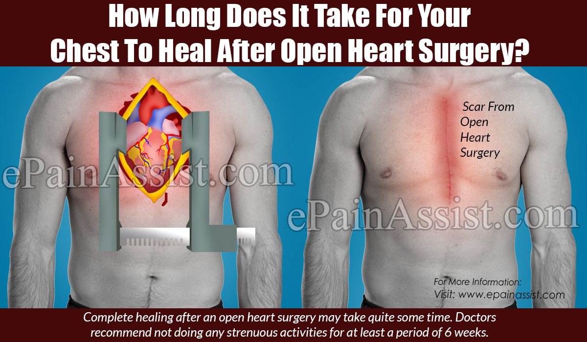 How Long Does It Take For Your Chest To Heal After Open