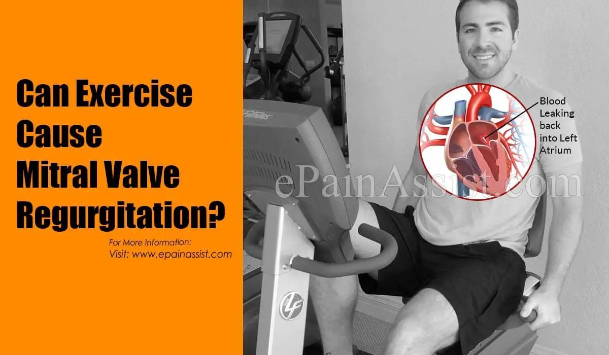 Can Exercise Cause Mitral Valve Regurgitation?