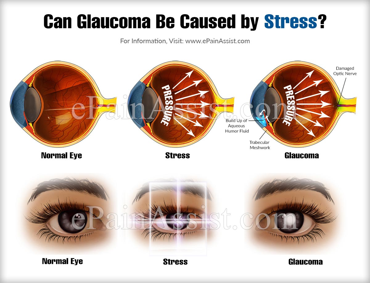 Can Glaucoma Be Caused by Stress?