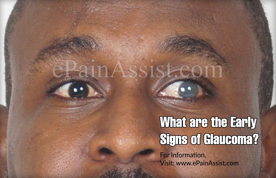 What are the Early Signs of Glaucoma?