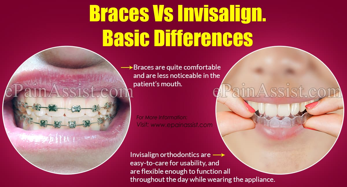 Braces Vs Invisalign: Differences Based on Colors ...