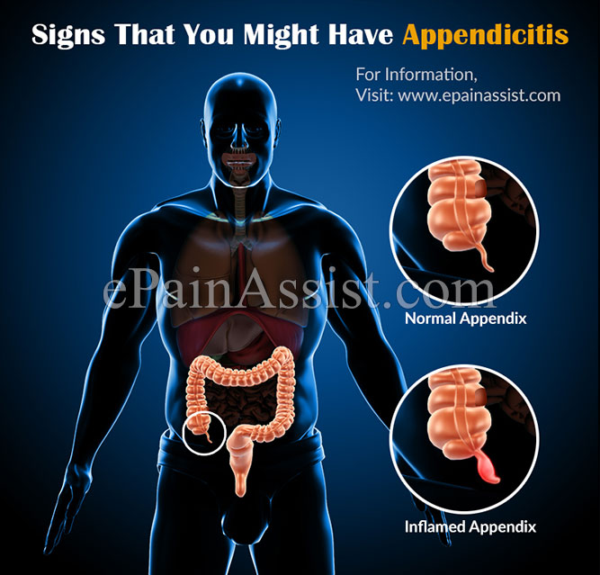Signs That You Might Have Appendicitis