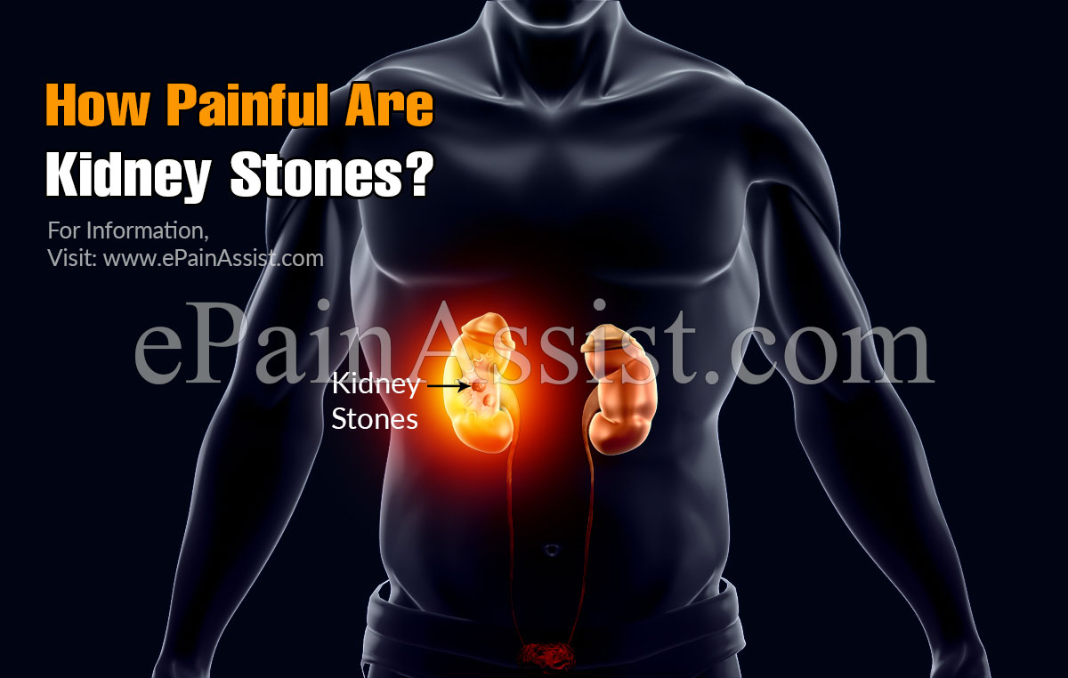 How Painful Are Kidney Stones?