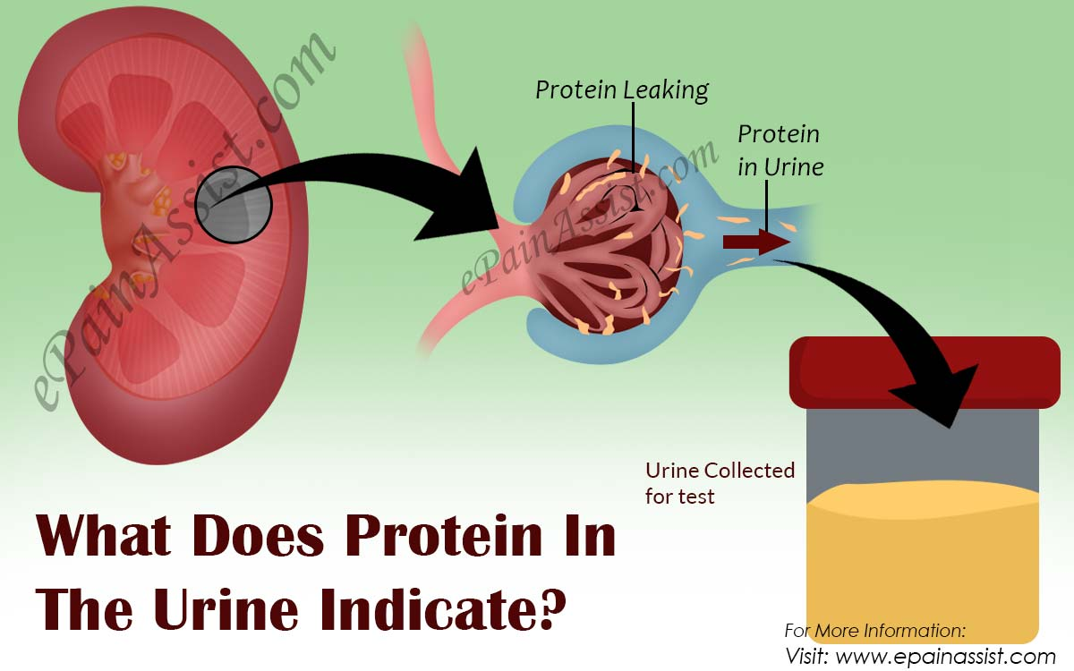 What Does Protein In The Urine Indicate?