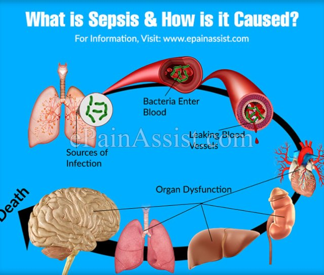 What Is Sepsis How Is It Caused
