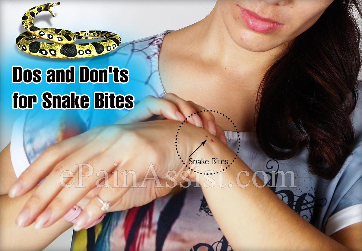 Dos and Don'ts for Snake Bites