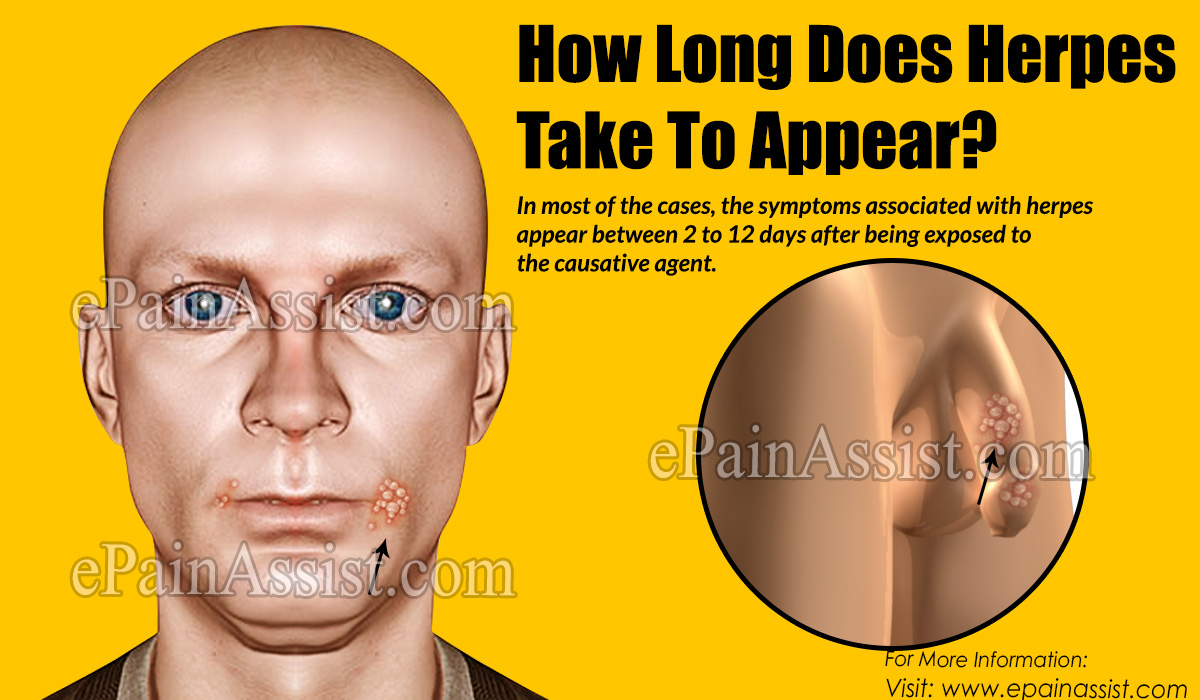 How Long Does Herpes Take To Appear  What are the Home