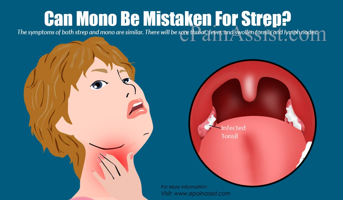 Can Mono Be Mistaken For Strep?