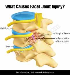 what causes facet joint injury  [ 1200 x 1111 Pixel ]