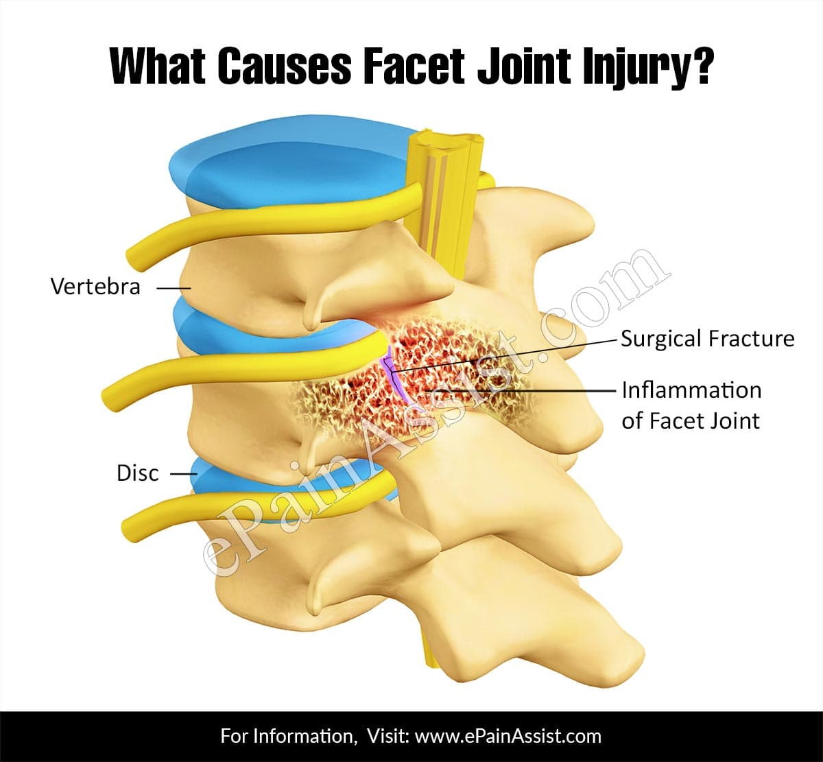 hight resolution of what causes facet joint injury