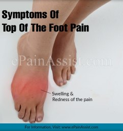 top of the foot pain and its statistics  [ 1200 x 1173 Pixel ]