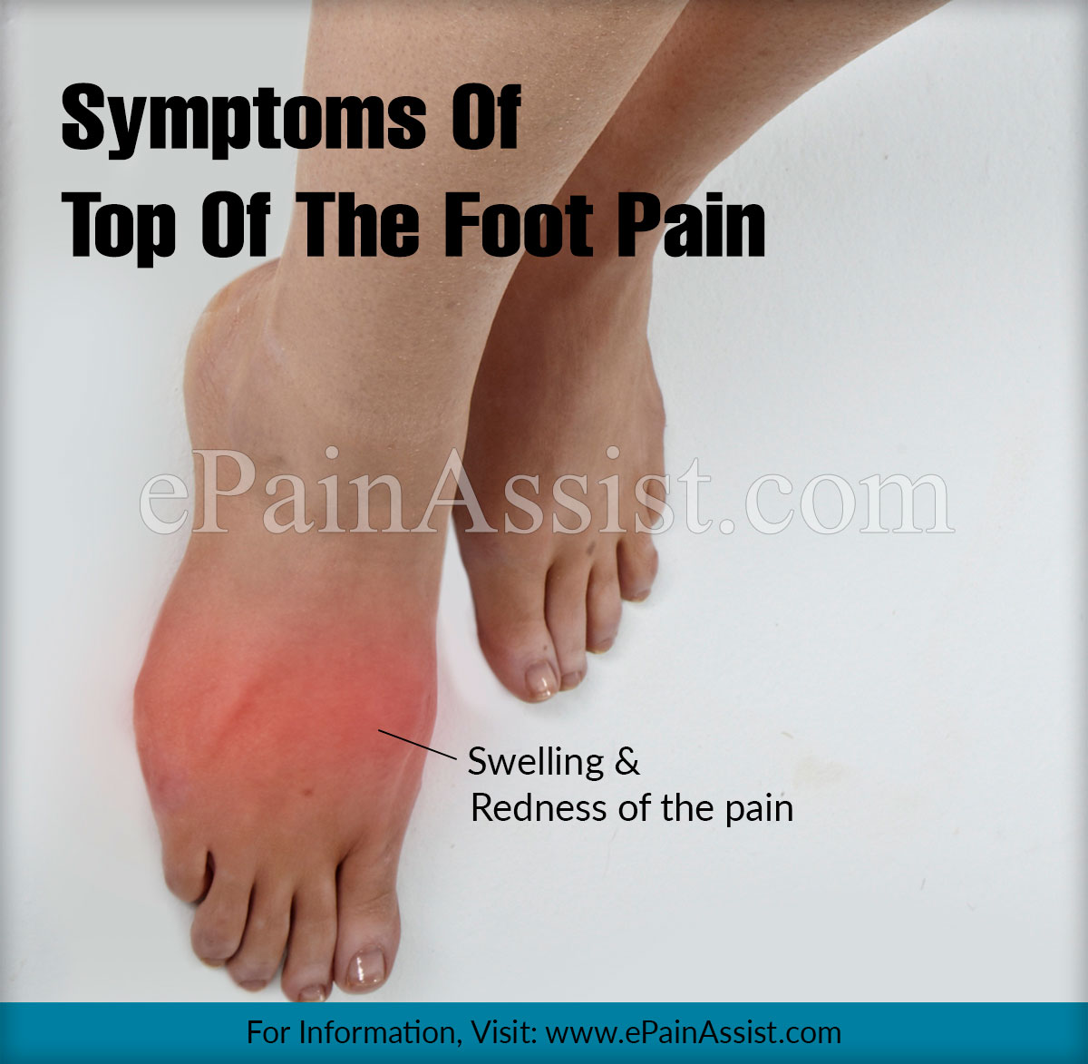 hight resolution of top of the foot pain and its statistics