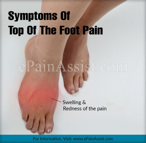small resolution of top of the foot pain and its statistics