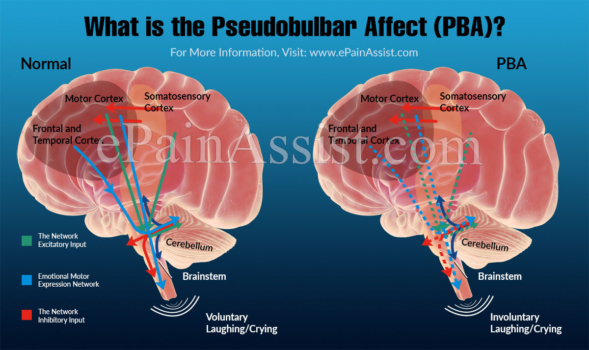 What is the Pseudobulbar Affect (PBA)?