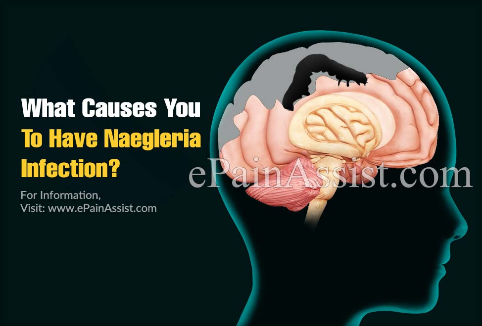 What Causes You To Have Naegleria Infection?