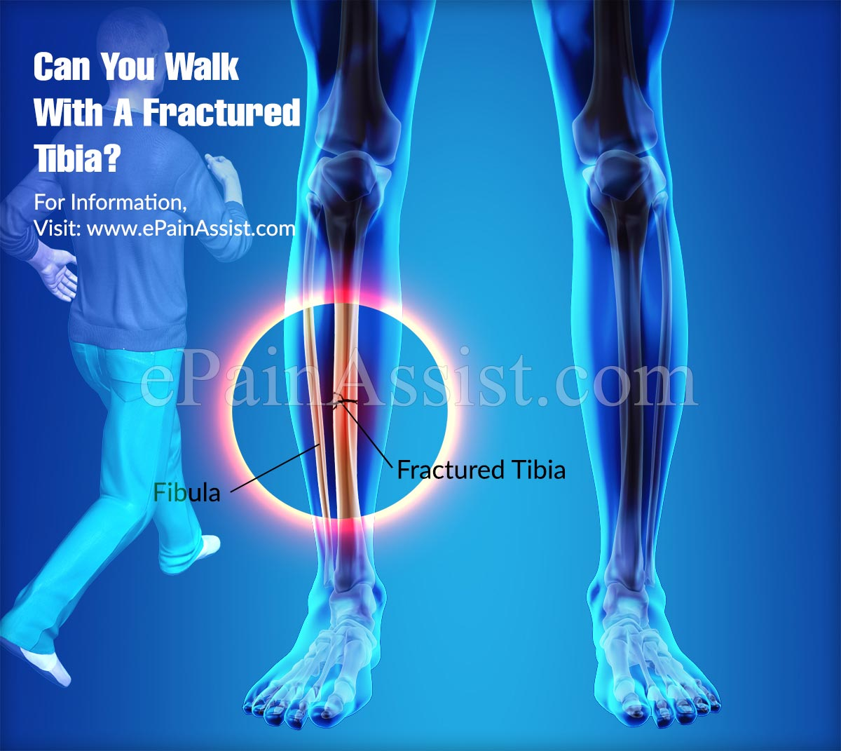 diagram of tibia stress fracture kenmore 106 refrigerator parts types symptoms and treatment