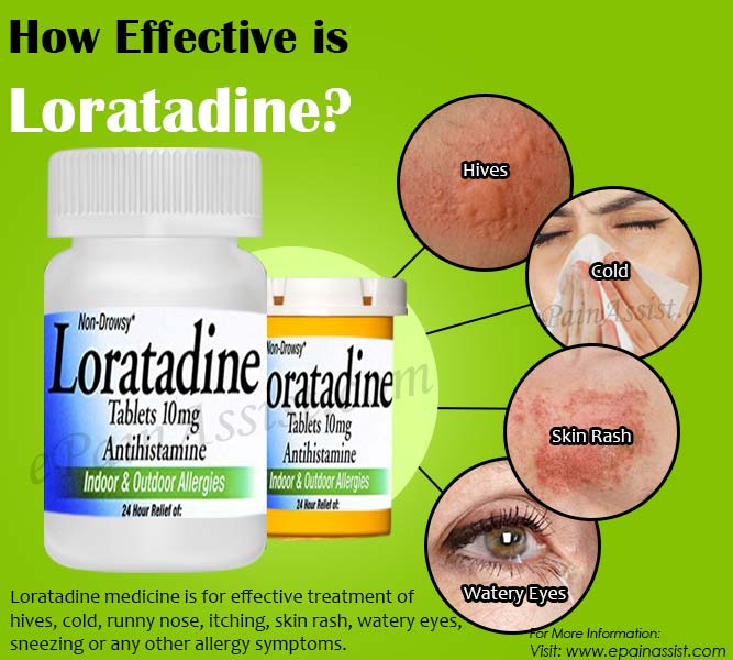 How Effective is Loratadine & What are its Side Effects?
