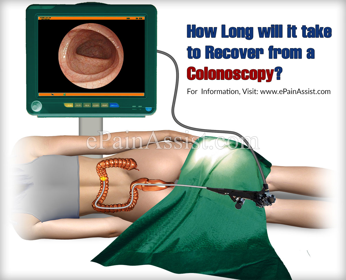 How Long will it take to Recover from a Colonoscopy