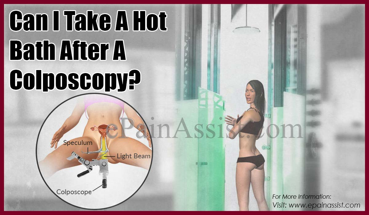 Can I Take A Hot Bath After A Colposcopy