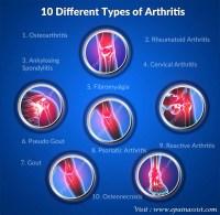 10 Different Types of Arthritis Osteoarthritis Rheumatoid ...