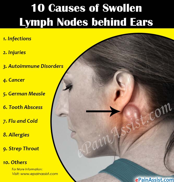 diagram lymph nodes on back of head 97 f150 4x4 wiring 10 causes swollen behind ears infections