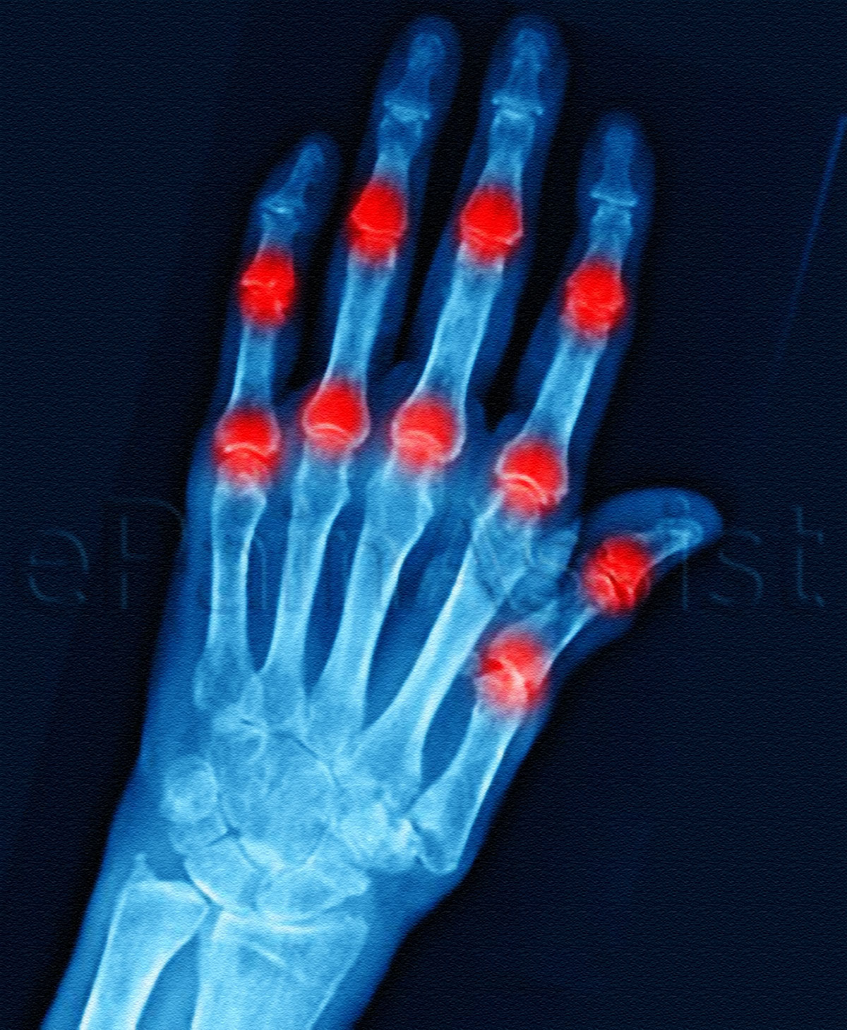 Causes of Arthritis(Joint Inflammation)